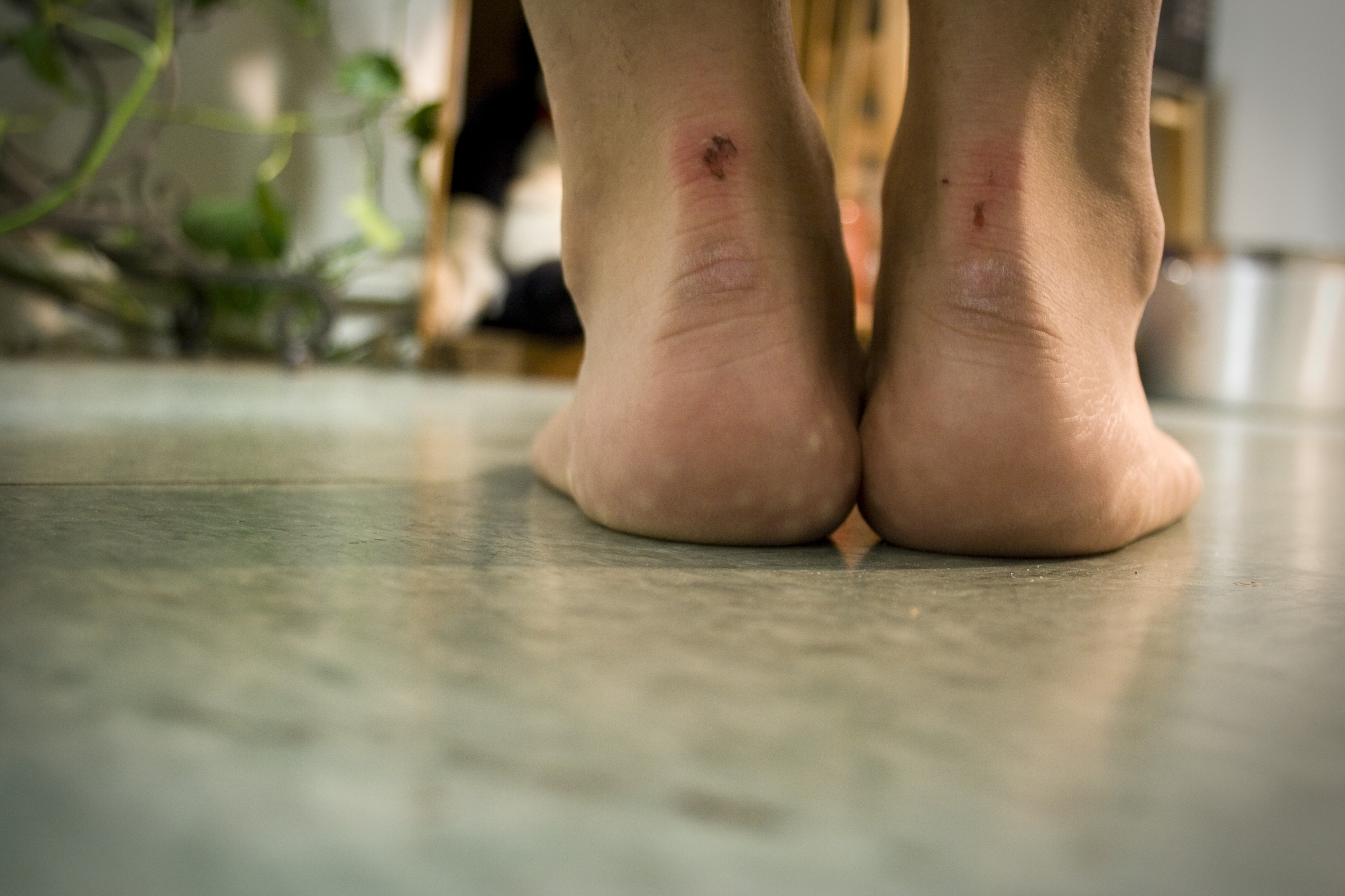 Feet hurt by bad shoe choice