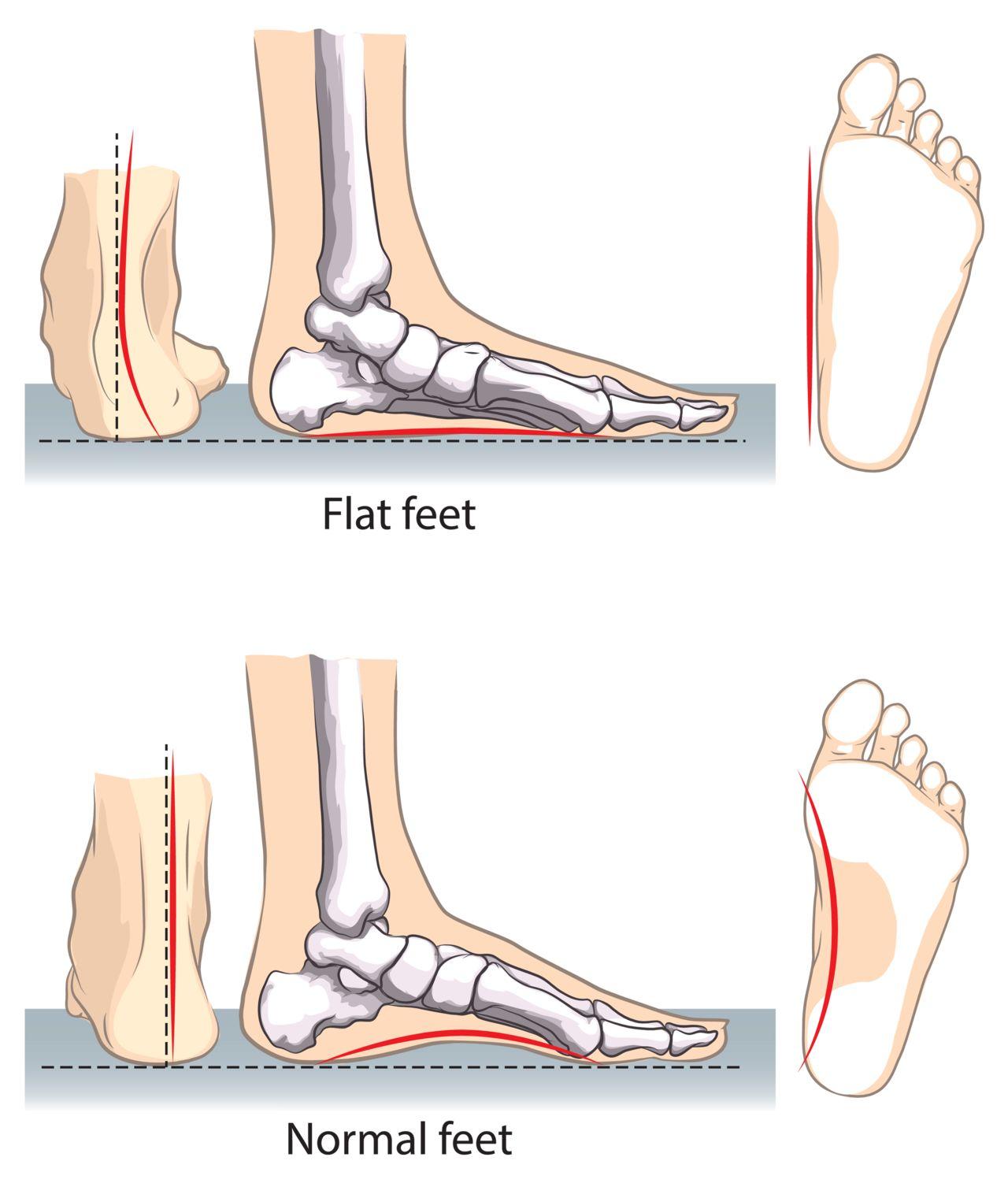 flat-feet1