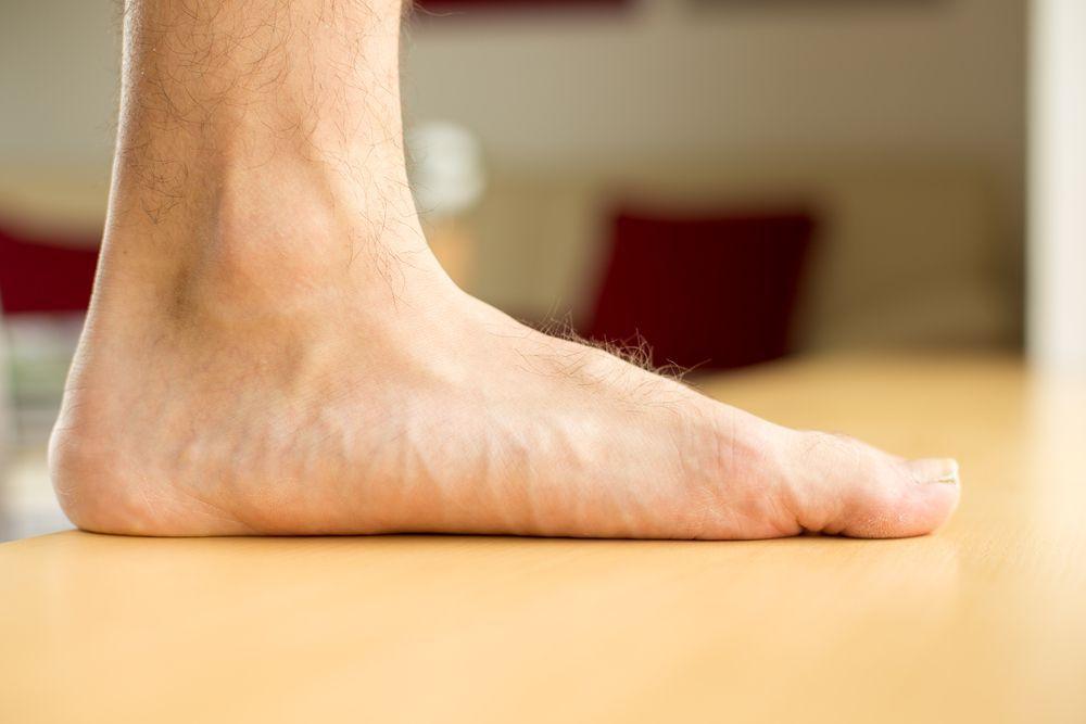 flat-feet3