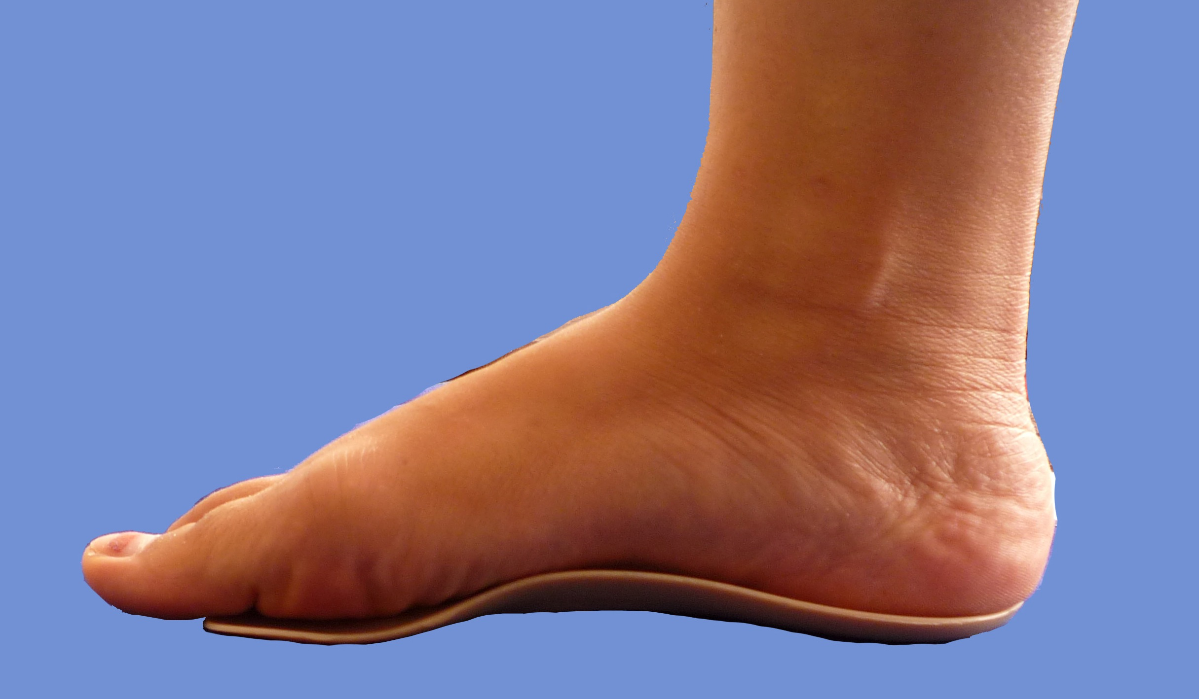 orthotic-insoles
