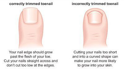 Trim Your Toenails With Extra Care Make Sure Are Cut Inch Perfectly In A Straight Line Without Any Pointed Parts Near The Edges
