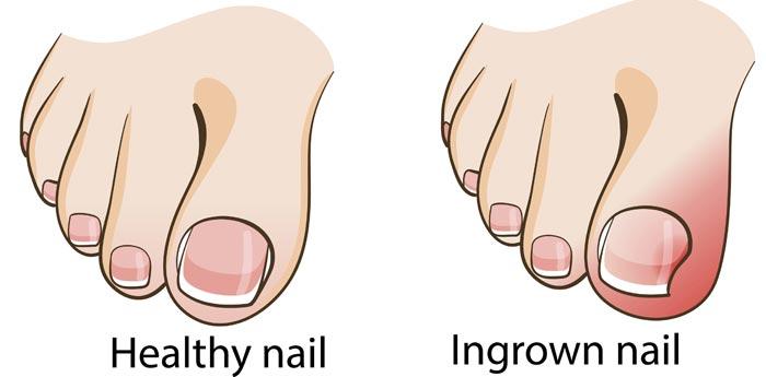 toenails3