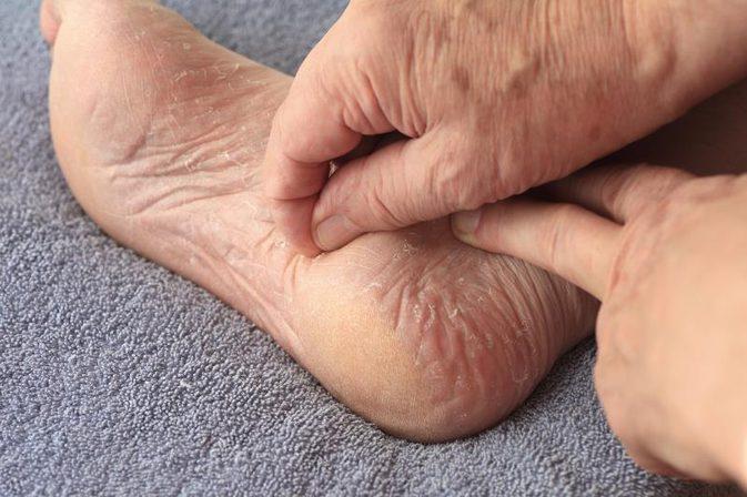 Foot Callus & Corn Removal-bad calluses