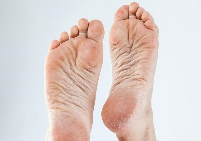 Foot Callus & Corn Removal-dehydrated skin with calluses
