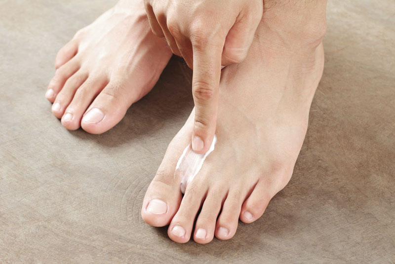 How To Treat And Prevent Athlete S Foot The Ultimate Guide