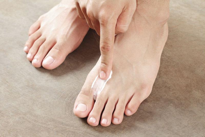 Athletes Foot Treatment - Rubbing cream on foot
