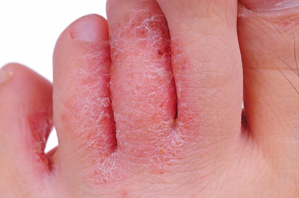 Athletes Foot Treatment - foot close up