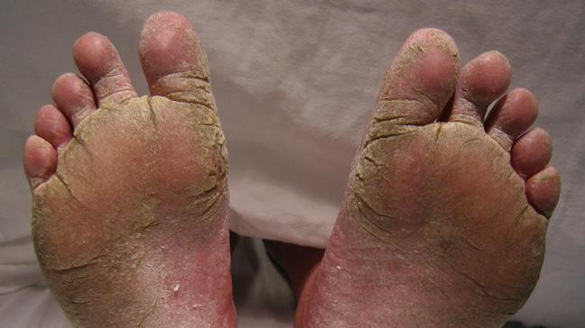 Athletes Foot Treatment - severe