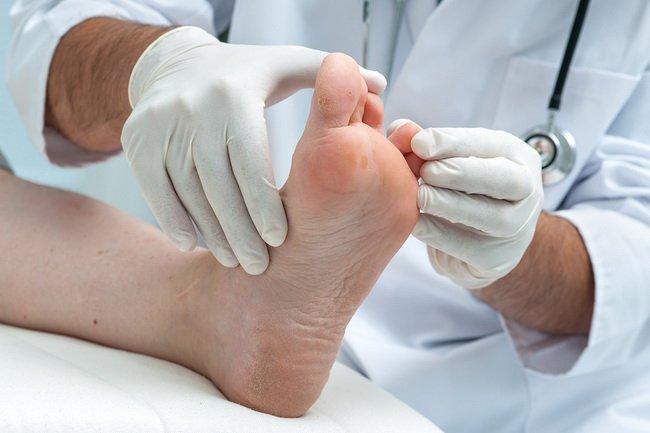 Athletes Foot Treatment - treatment