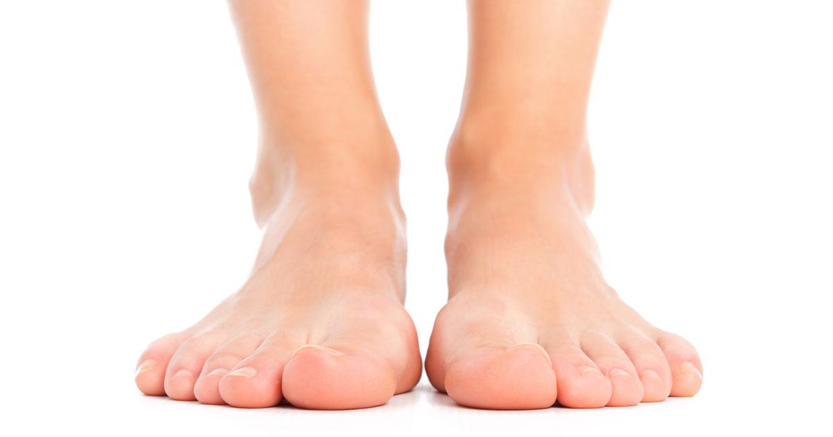 Foot Blister Prevention & Treatment - Blister on the foot