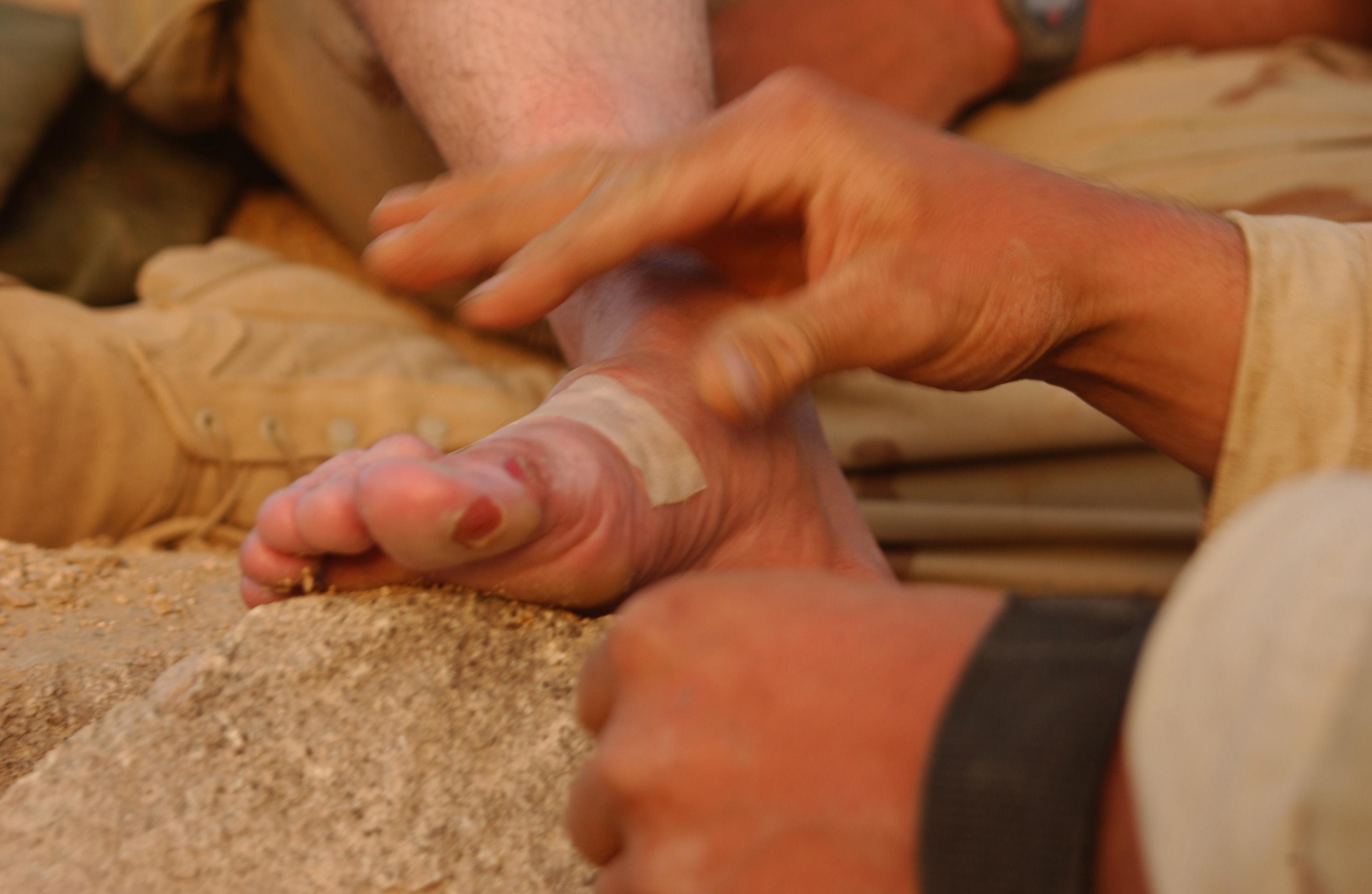 Foot-Blister-Prevention-Treatment-aiding-Blistered-feet