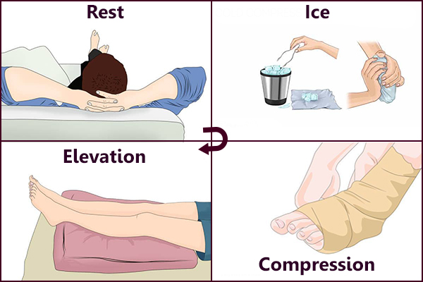 rest, ice, compression and elevation