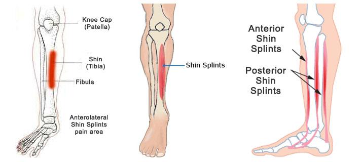 shin splint injury