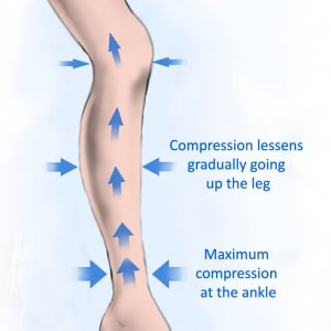 how do compression socks work