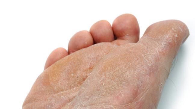 fungus on foot