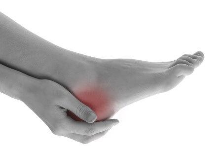 foot bursitis recovery